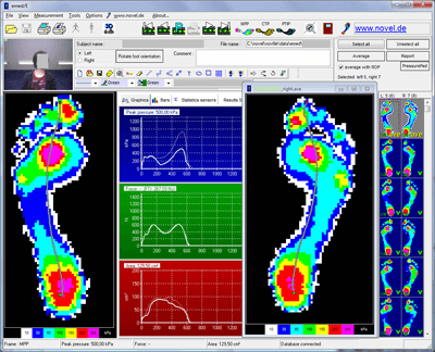 emed/E (Expert) Software - novel force and pressure measurement systems