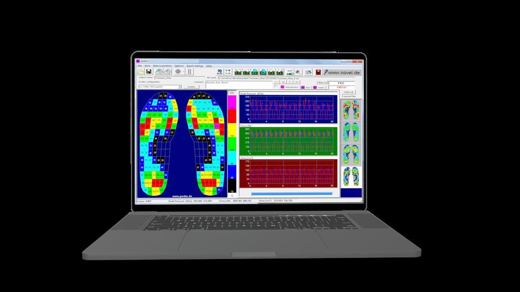 PEDAR - the most accurate foot pressure measurement insole